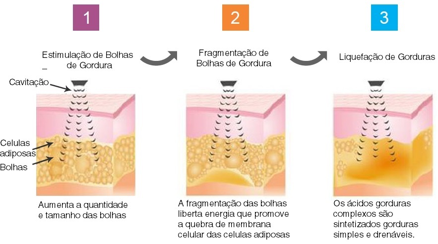 como funciona a cavitação